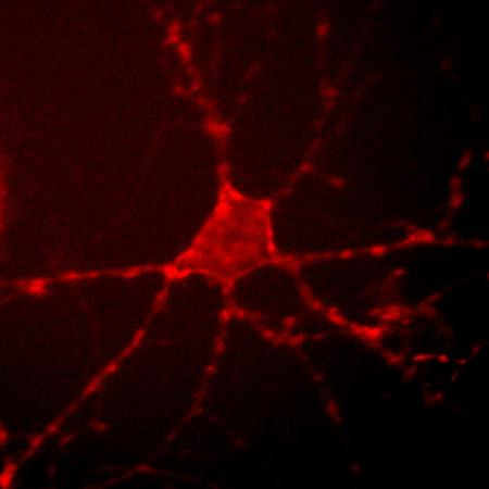 Archer1 fluorescence in a cultured rat hippocampal neuron