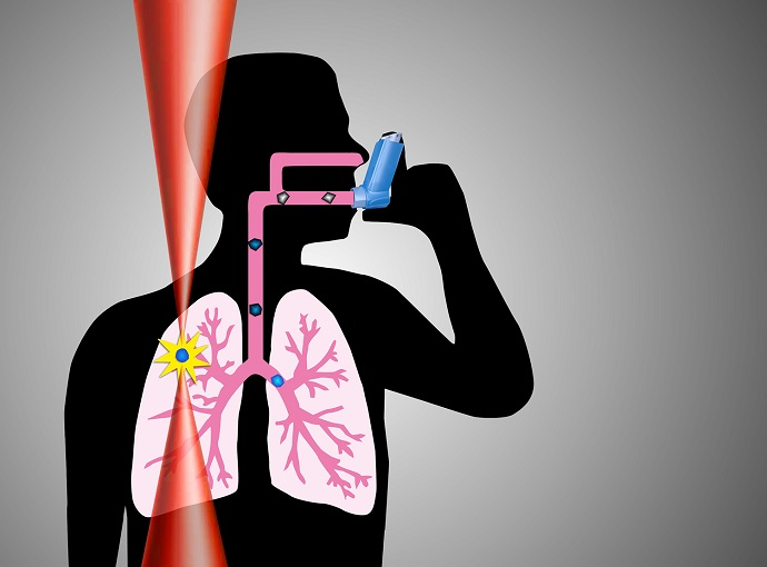 Lasers could improve the treatment of asthma